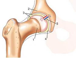 Исследование тазобедренного сустава