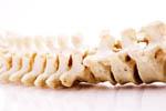 Спинальный первичный арахноидит