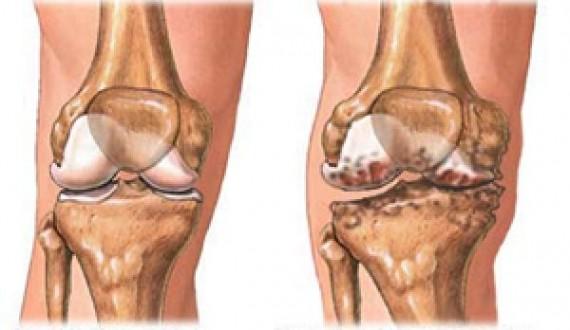 Грязь для суставов 3 степени уколы от боли в суставах на т