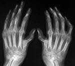 Бруцеллезный артрит