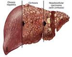 Вирусный гепатит. Лечение.