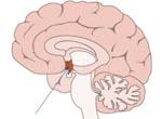 Гипоталамический синдром - симптомы и лечение с помощью лечебной грязи