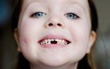 Уход за зубами и грязелечение
